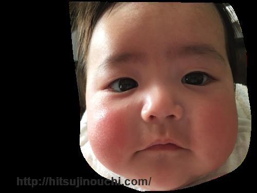 赤ちゃん ふた え に なっ た 赤ちゃんが二重から一重になった?!その原因とは?